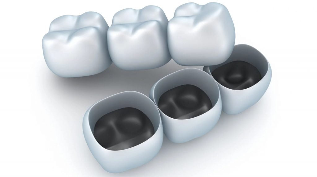 Canva Artificial tooth crowns scaled 1